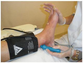 Doppler de transiluminacion para el diagnostico de las varices